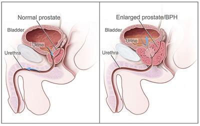 enlarged-prostate