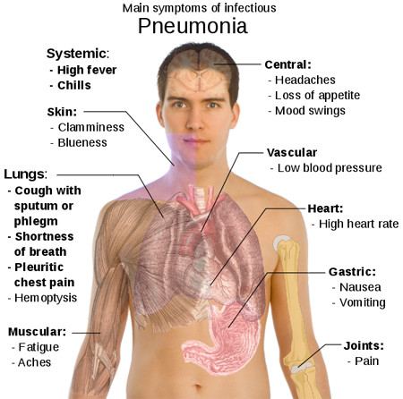 Both bronchitis and pneumonia are serious diseases affecting the lower ...