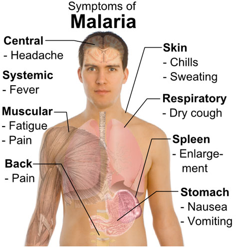 Difference Between Malaria and Yellow Fever | Difference Between ...