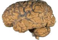 brain-pd