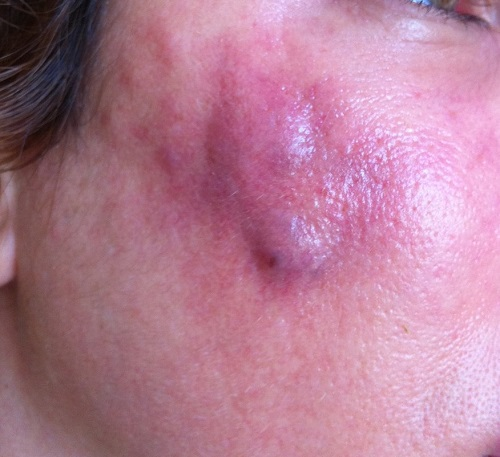 Difference Between Abscess and Boil