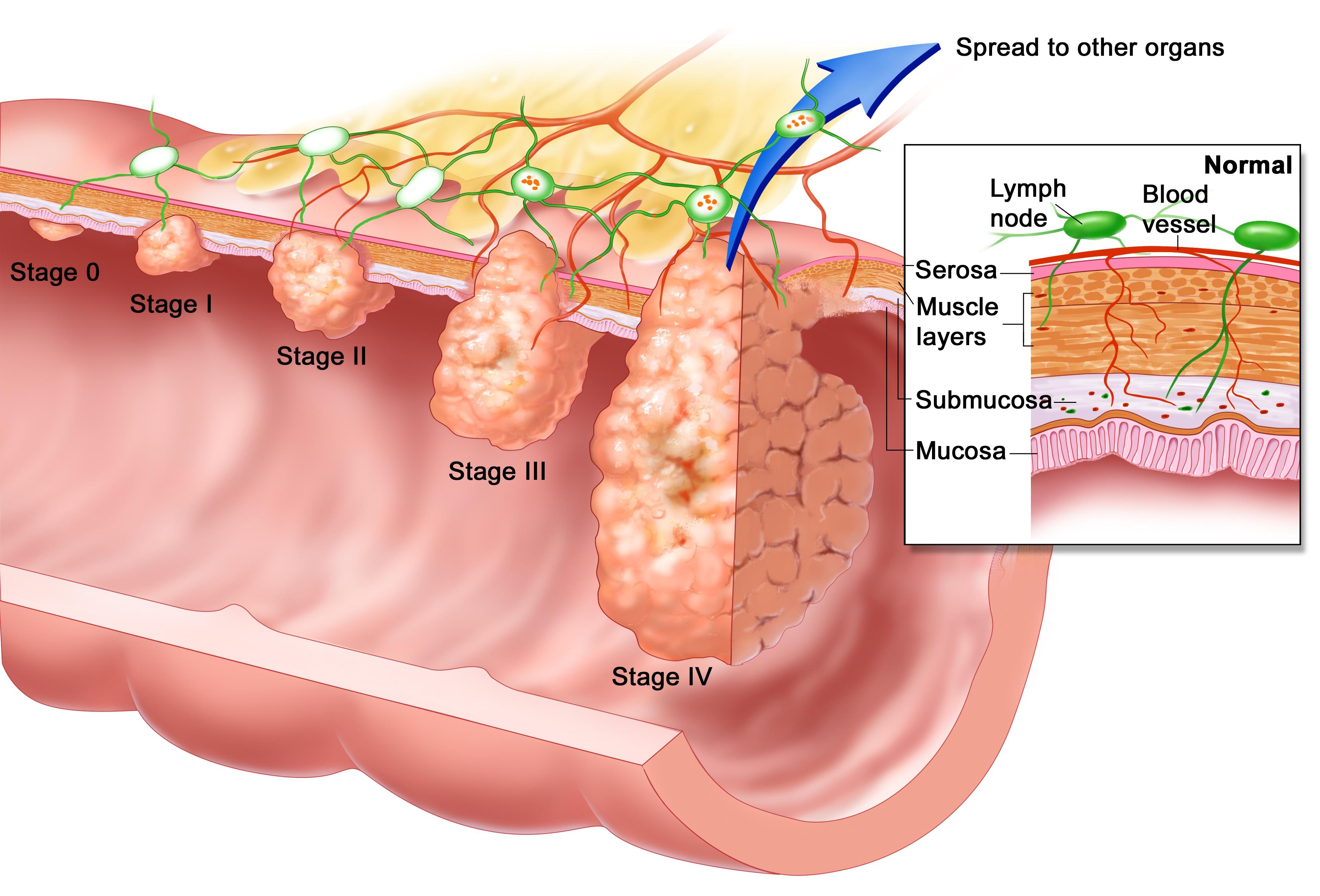 cancer rectal hemorrhoids