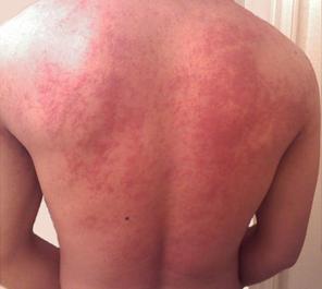 hives-back-man