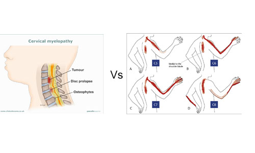 myelopathy and radiculopathy