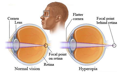 near sightedness and far sightedness