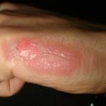 Hand2ndburn