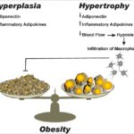Difference Between Hypertrophy and Hyperplasia