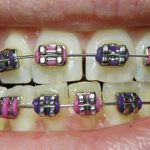 Difference between Ceramic and Metal Braces-1